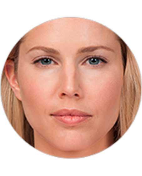 patient after Botox Procedure in New Jersey