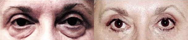 Eyelid Surgery BEFORE AND AFTER PHOTOS : female, frontal view - patient 1, Closter, NJ