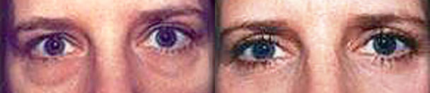 Eyelid Surgery BEFORE AND AFTER PHOTOS : female, frontal view - patient 2, NJ