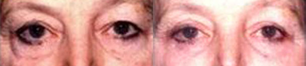 Eyelid Surgery BEFORE AND AFTER PHOTOS : female, frontal view - patient 3, Closter, NJ