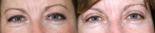 Eyelid Surgery BEFORE AND AFTER PHOTOS : female, frontal view - patient 5, NJ
