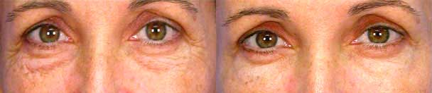 Eyelid Surgery BEFORE AND AFTER PHOTOS : female, frontal view - patient 6, Closter, NJ