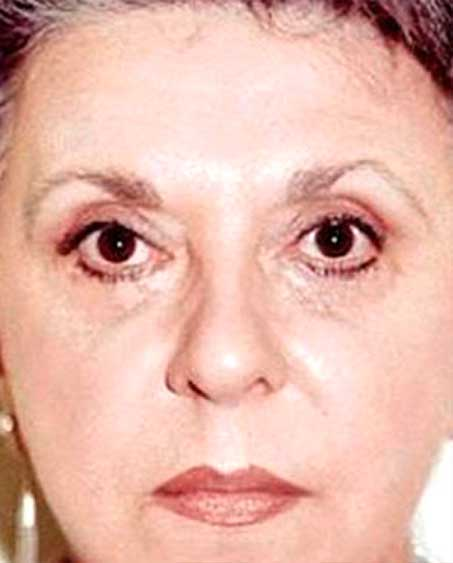 after Eyelid Surgery in NJ