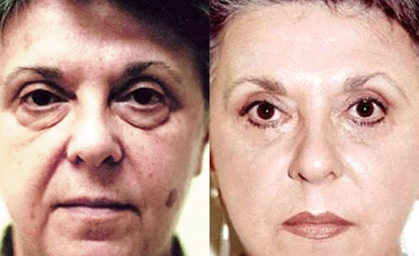 FACELIFT BEFORE and AFTER PHOTOS - female patient 10 (front view)