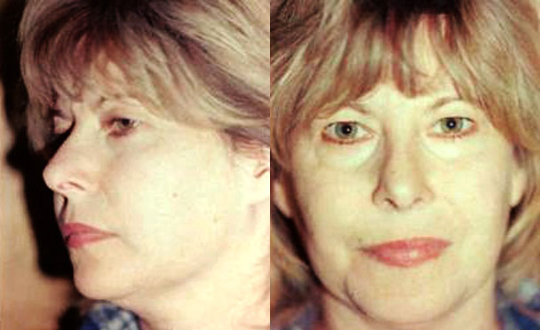 FACELIFT BEFORE PHOTO - female patient 2 (front view)