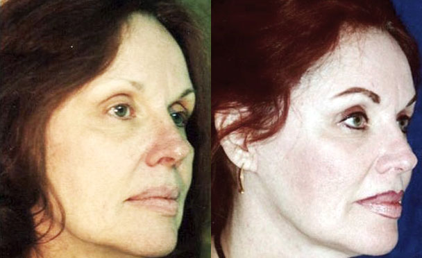 FACELIFT BEFORE and AFTER PHOTOS - female patient 3 (oblique view)