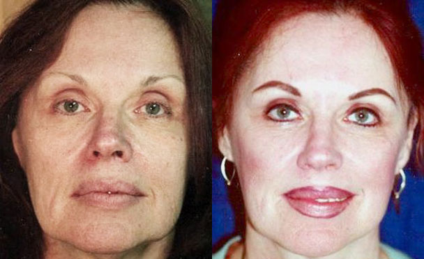 FACELIFT BEFORE and AFTER PHOTOS - female patient 3 (front view)
