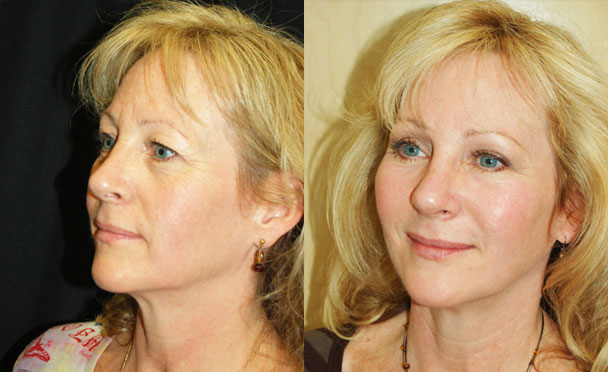 FACELIFT BEFORE and AFTER PHOTOS - female patient 4 (oblique view)