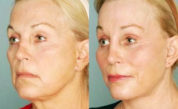 FACELIFT BEFORE and AFTER PHOTOS - female patient 5 (oblique view)