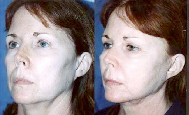 FACELIFT BEFORE and AFTER PHOTOS - female patient 6 (oblique view)