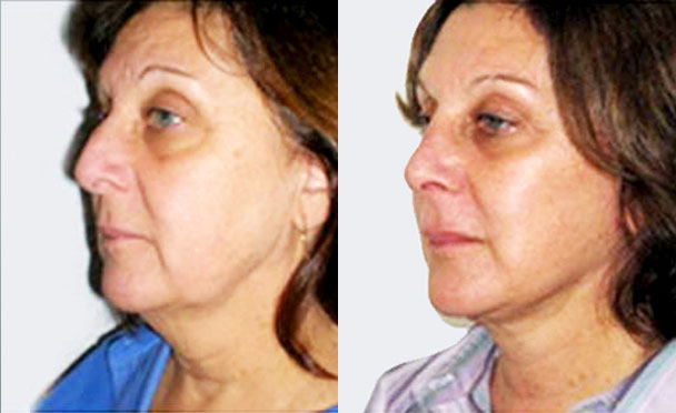 FACELIFT BEFORE and AFTER PHOTOS - female patient 7 (oblique view)