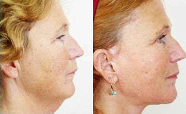 FACELIFT BEFORE and AFTER PHOTOS - female patient 8 (right side view)