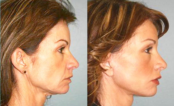 FACELIFT BEFORE AND AFTER PHOTOS - female patient 1 (right side view)