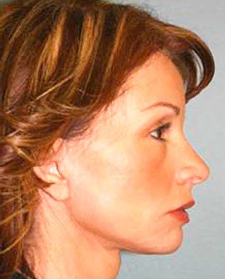 patient after Facelift Procedure in Englewood, New Jersey