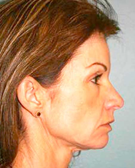 patient before Facelift Procedure in Ridgewood, NJ