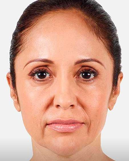 before Juvederm Procedure in Teaneck, NJ