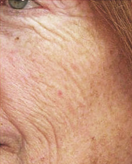 patient before Laser Resurfacing in New Jersey