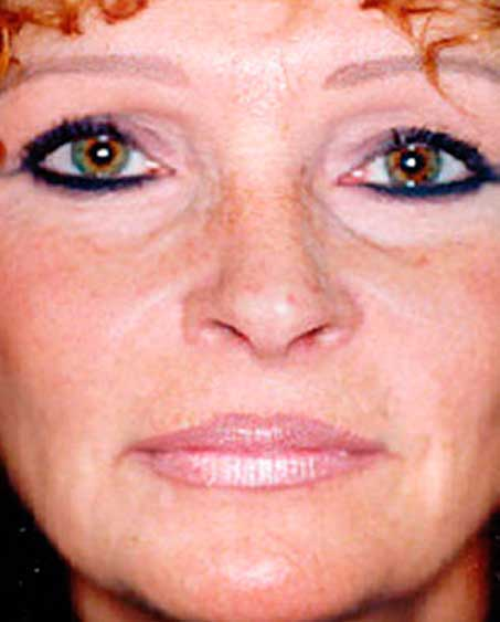 patient after Liquid Facelift Procedure