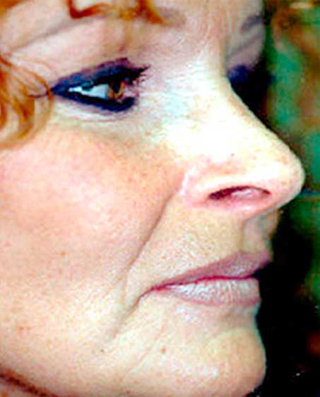 patient before Liquid Facelift Procedure