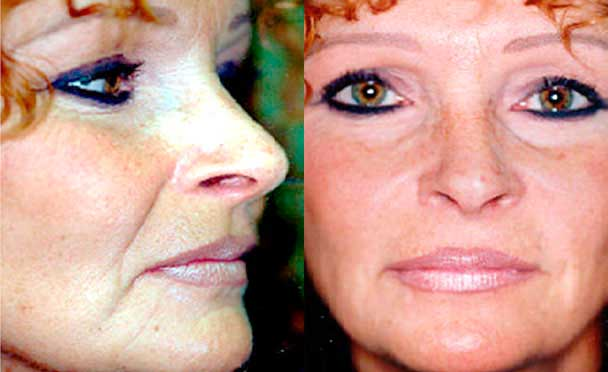 Botox - Before and After Photos - female patient 3
