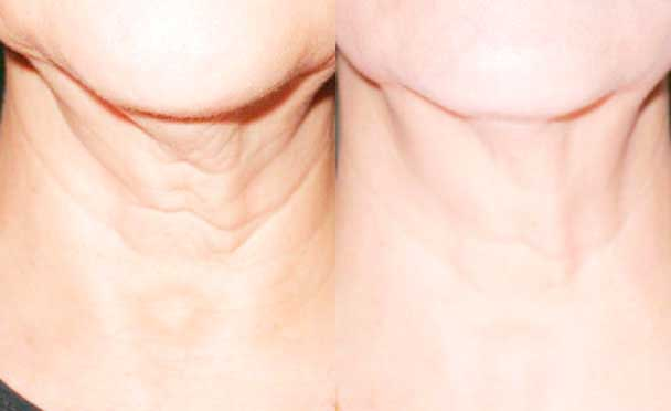 Botox - Before and After Photos - female patient 4 (neck)