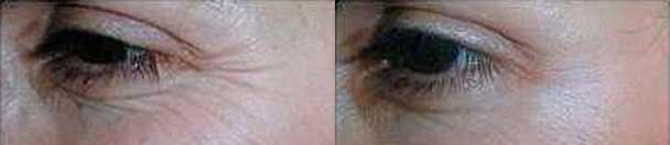 Botox - Before and After Photos - female patient 5 (eyelid)