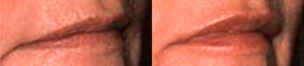 Botox - Before and After Photos - female patient 7 (lips)