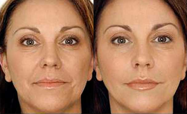 Botox - Before and After Photos - female patient 2