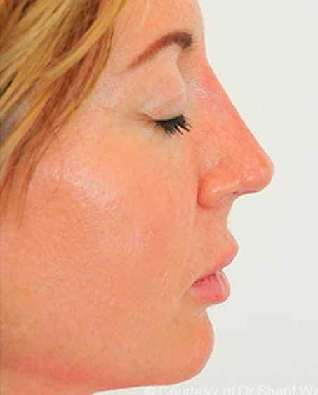 Non-Surgical Nose Job - Photo After Treatment
