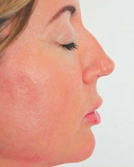 Non-Surgical Nose Job - Photo Before Treatment