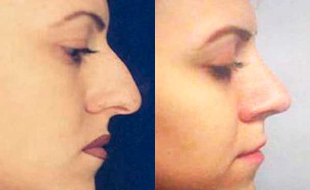 RHINOPLASTY BEFORE AND AFTER PHOTOS - Female, patient 10 (right side view)