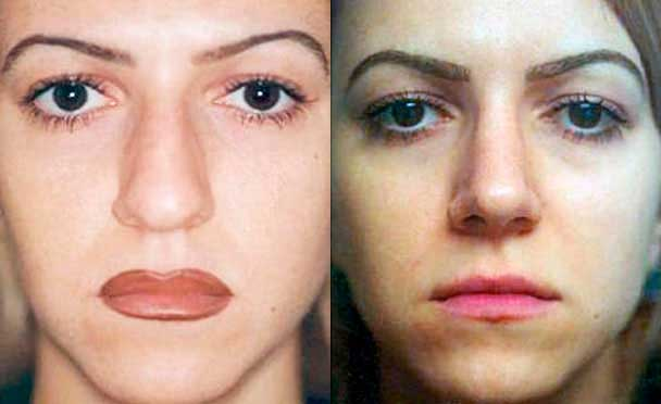 female patient before and after Nose Job Procedure