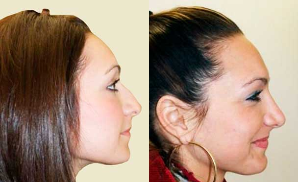 RHINOPLASTY BEFORE AND AFTER PHOTOS - Female, patient 11 (right side view)