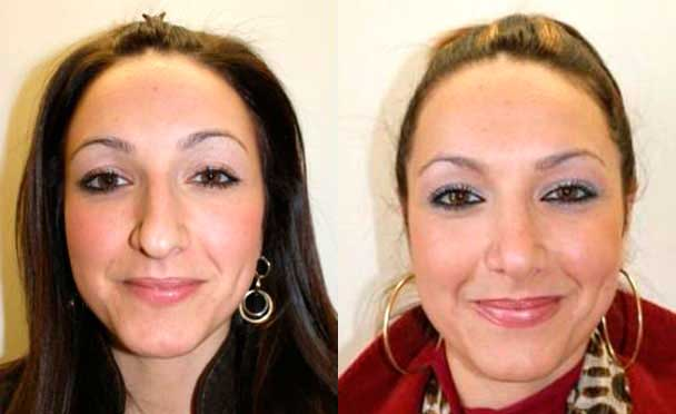 patient before and after Nose Job Procedure