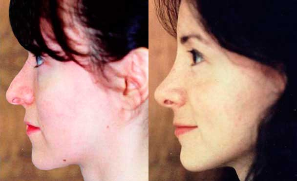 RHINOPLASTY BEFORE AND AFTER PHOTOS - Female, patient 12 (left side view)
