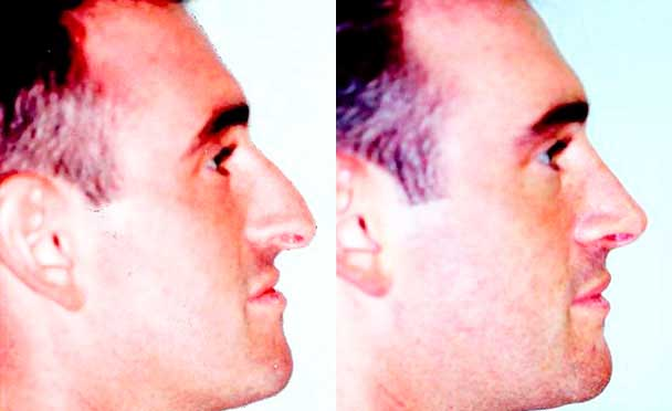 RHINOPLASTY BEFORE AND AFTER PHOTOS - Male, patient 13 (right side view)
