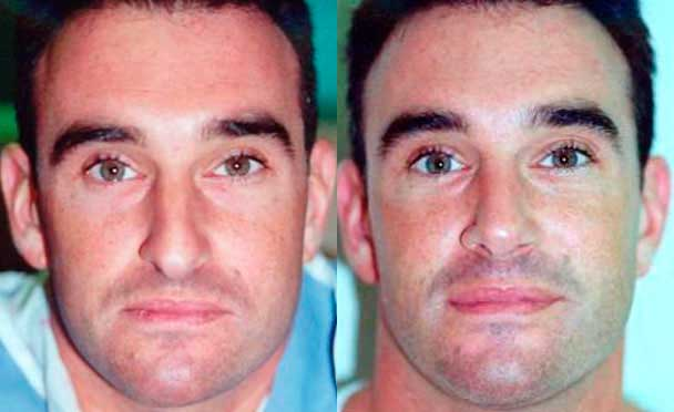 photos male patient before and after Rhinoplasty Procedure