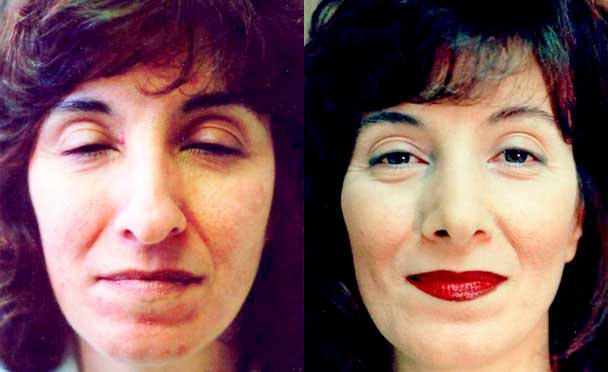 photos patient before and after Rhinoplasty Procedure