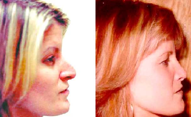 female patient before and after Rhinoplasty Procedure