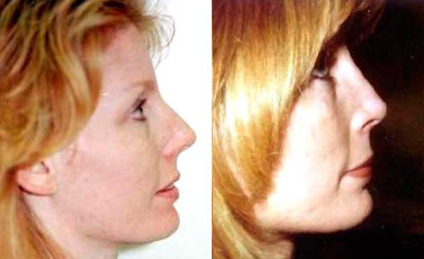 RHINOPLASTY BEFORE AND AFTER PHOTOS - Female, patient 17 (right side view)