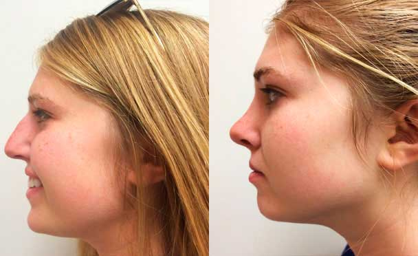 RHINOPLASTY BEFORE AND AFTER PHOTOS - Female, patient 2 (left side view)