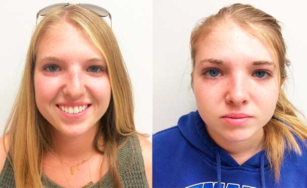 female patient before and after Rhinoplasty Procedure in NJ