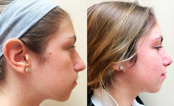 RHINOPLASTY BEFORE AND AFTER PHOTOS - Female, patient 3 (right side view)