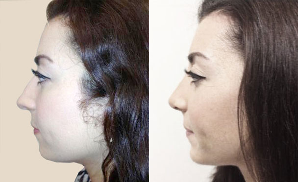 RHINOPLASTY BEFORE AND AFTER PHOTOS - Female, patient 4 (left side view)