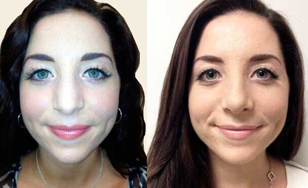 patient before and after Rhinoplasty Procedure - photos