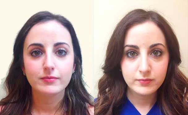 RHINOPLASTY BEFORE AND AFTER PHOTOS - Female, patient 5