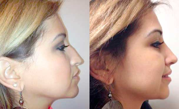 RHINOPLASTY BEFORE AND AFTER PHOTOS - Female, patient 7 (right side view)