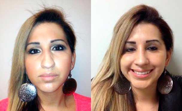 photos female patient before and after Nose Job in NJ