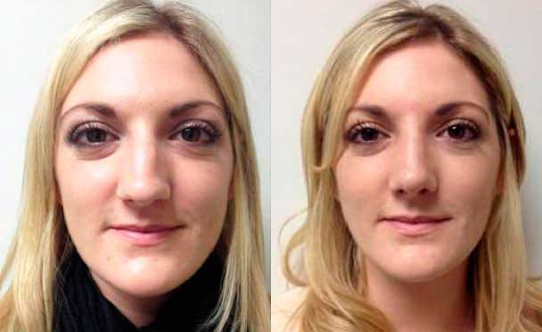 photos female patient before and after Nose Job in Teaneck