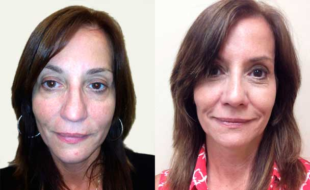 female patient before and after Nose Surgery in Teaneck
